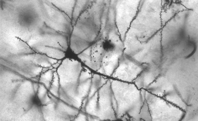 Neurociencia y seguridad vial: el frustrado idilio