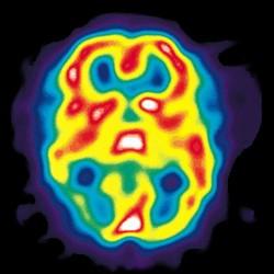 Cefaleas, migrañas y conducción